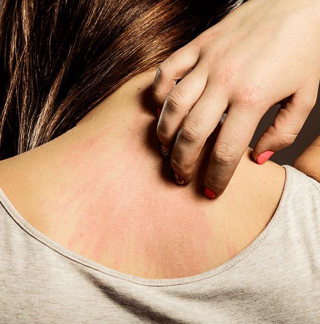 protein tozu alerji